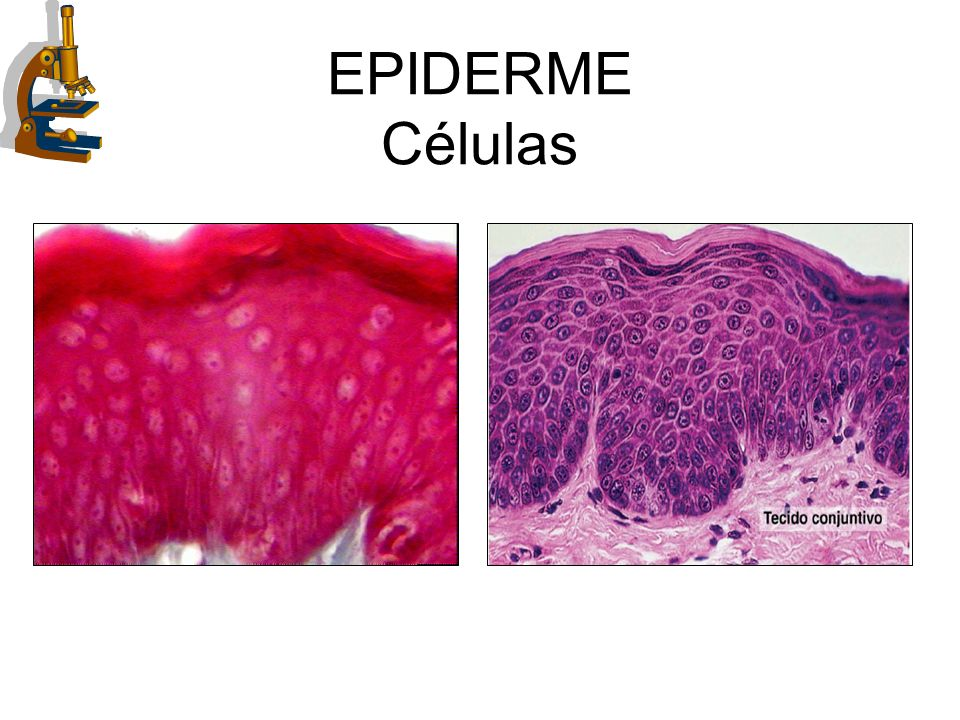 EPIDERME Células