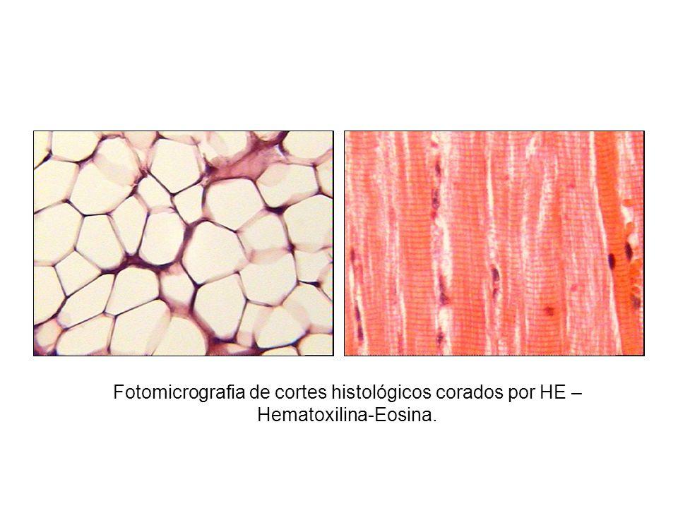 Fotomicrografia de cortes histológicos corados por HE – Hematoxilina-Eosina.