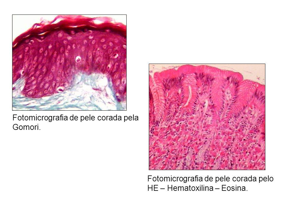 Fotomicrografia de pele corada pela Gomori.