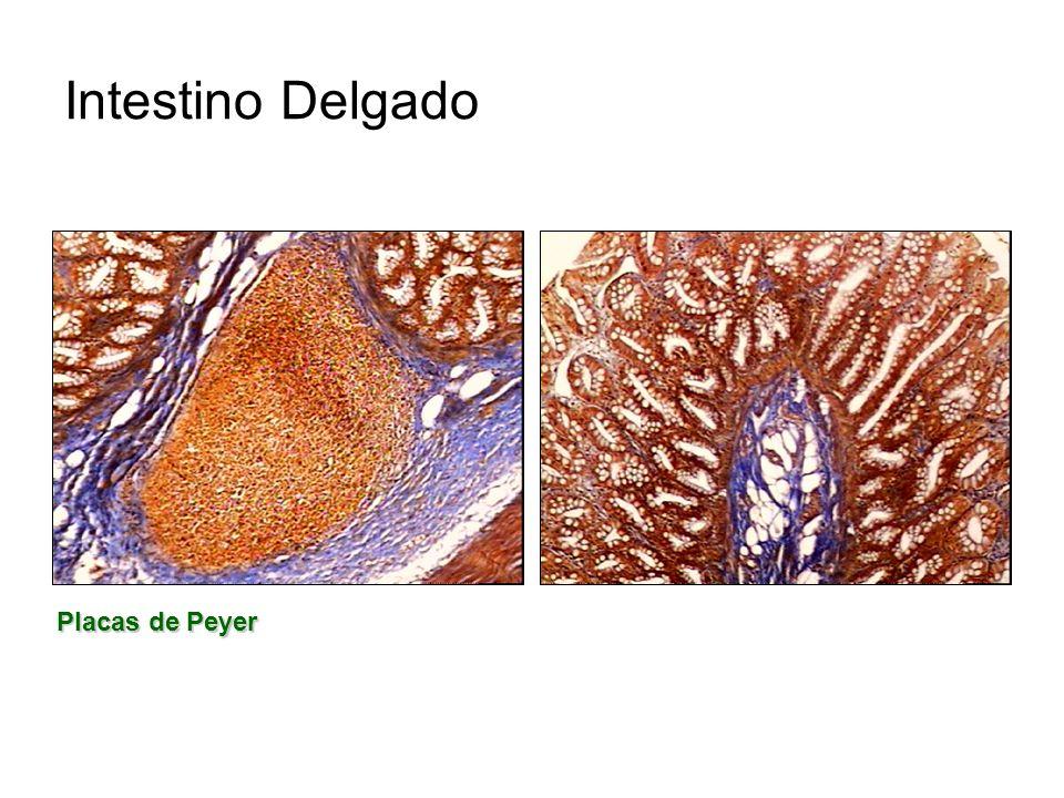 Intestino Delgado Placas de Peyer