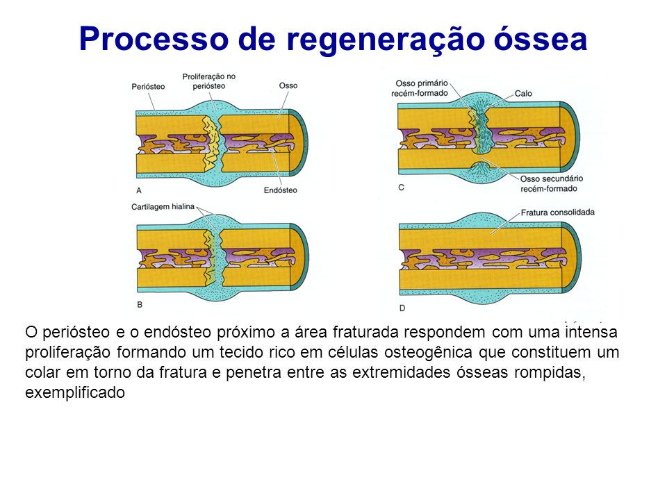 Processo de regeneração óssea