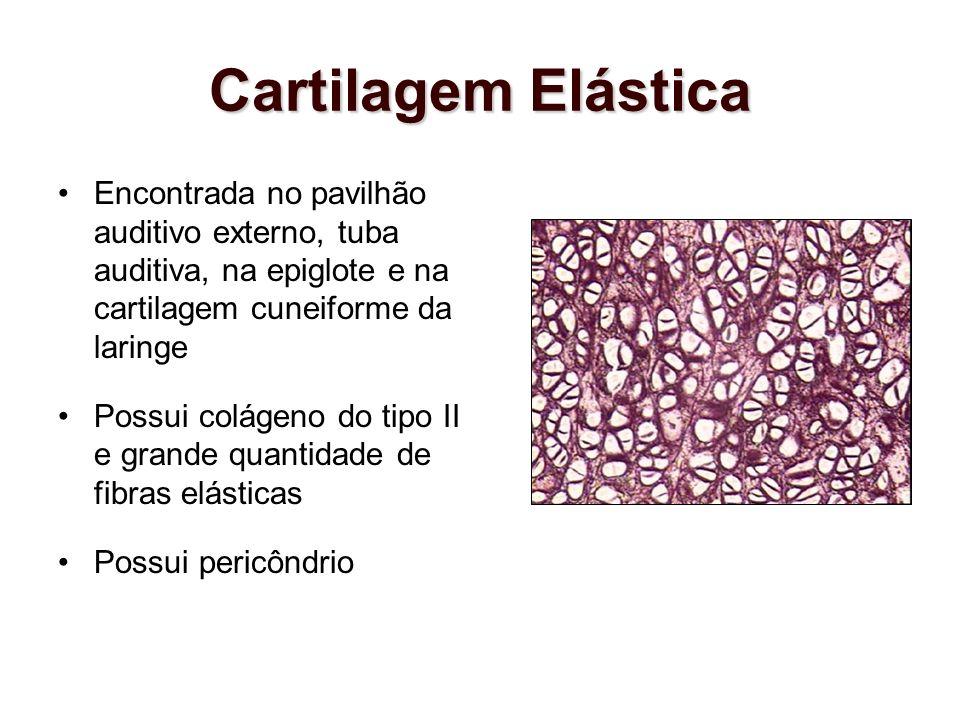 Cartilagem ElásticaEncontrada no pavilhão auditivo externo, tuba auditiva, na epiglote e na cartilagem cuneiforme da laringe.