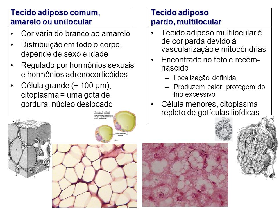 Tecido adiposo comum, amarelo ou unilocular