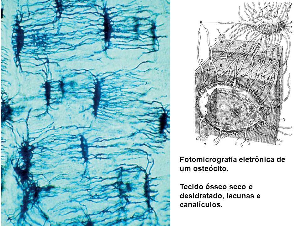 Fotomicrografia eletrônica de um osteócito.