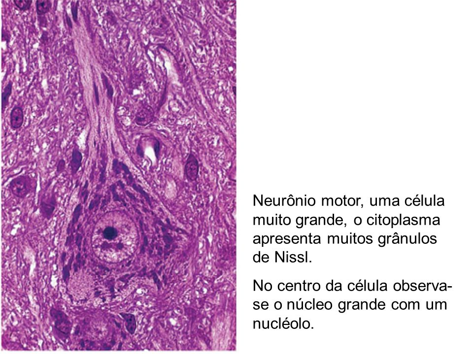 Neurônio motor, uma célula muito grande, o citoplasma apresenta muitos grânulos de Nissl.
