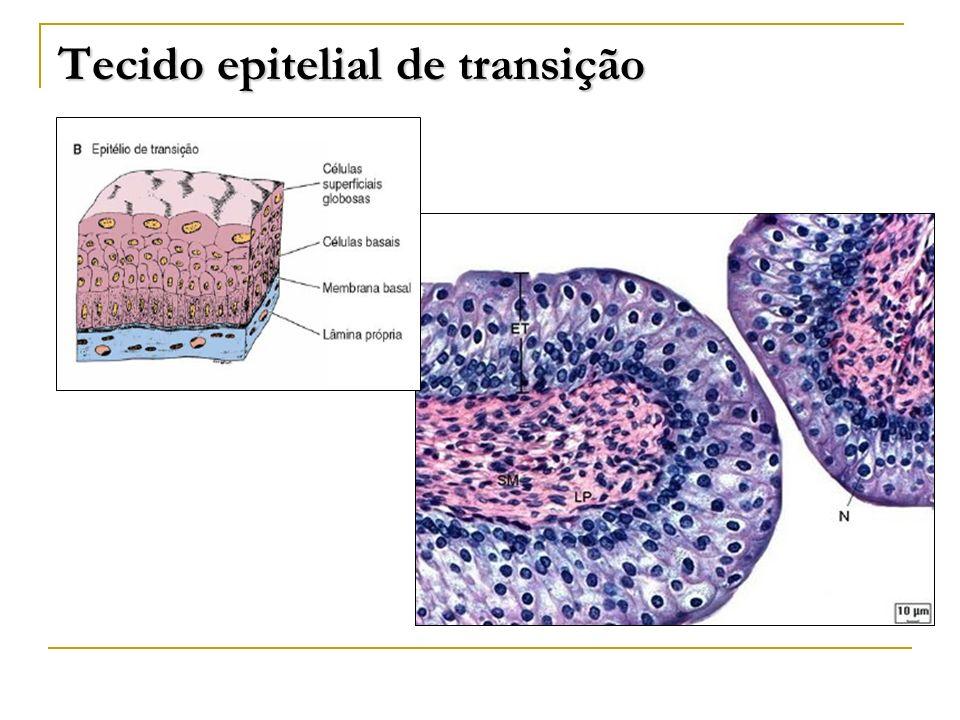 Tecido epitelial de transição