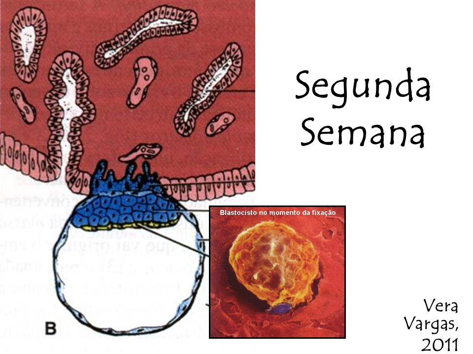 Segunda Semana Vera Vargas, 2011