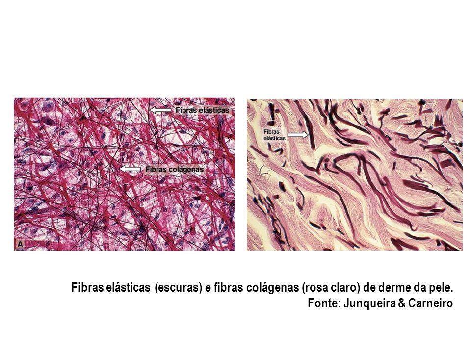 Fibras elásticas (escuras) e fibras colágenas (rosa claro) de derme da pele.