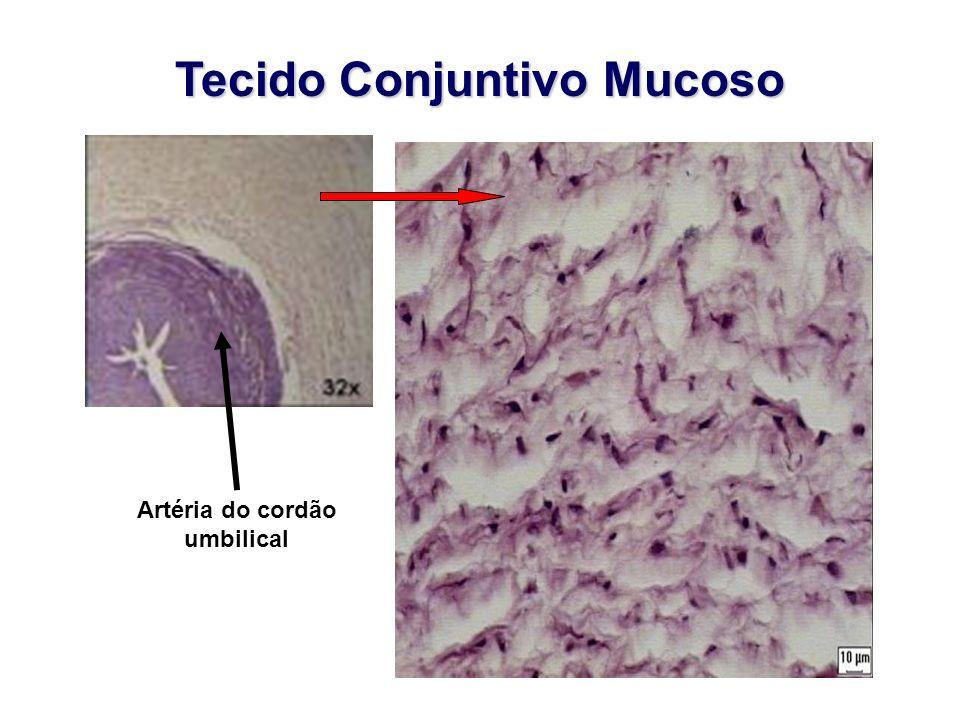 Tecido Conjuntivo Mucoso Artéria do cordão umbilical