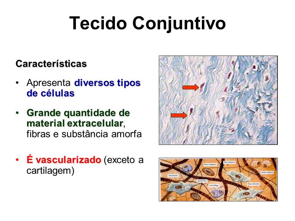 Tecido Conjuntivo Características Apresenta diversos tipos de células