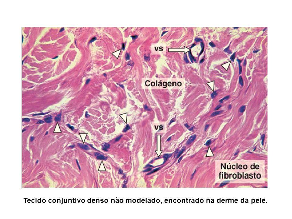 Tecido conjuntivo denso não modelado, encontrado na derme da pele.