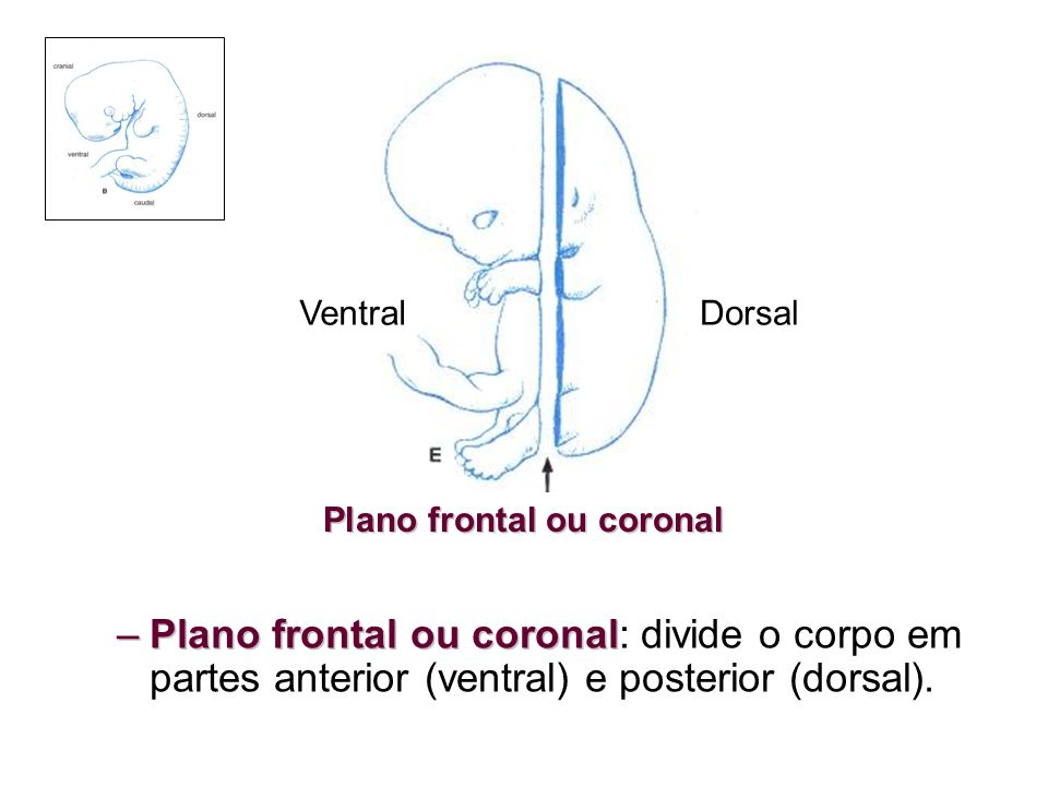 Plano frontal ou coronal