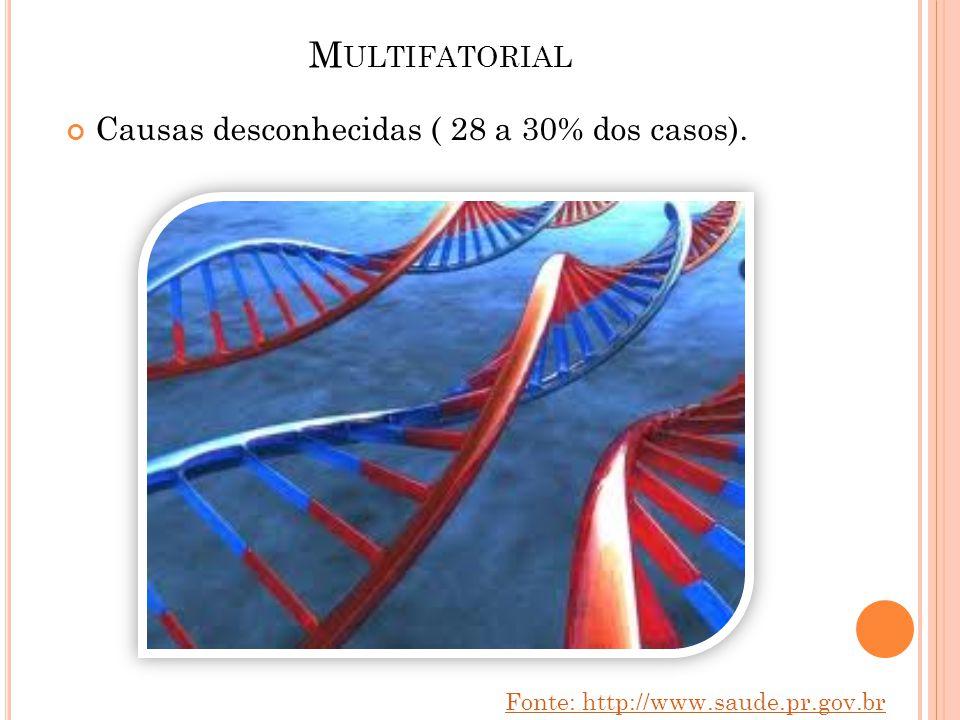 Multifatorial Causas desconhecidas ( 28 a 30% dos casos).
