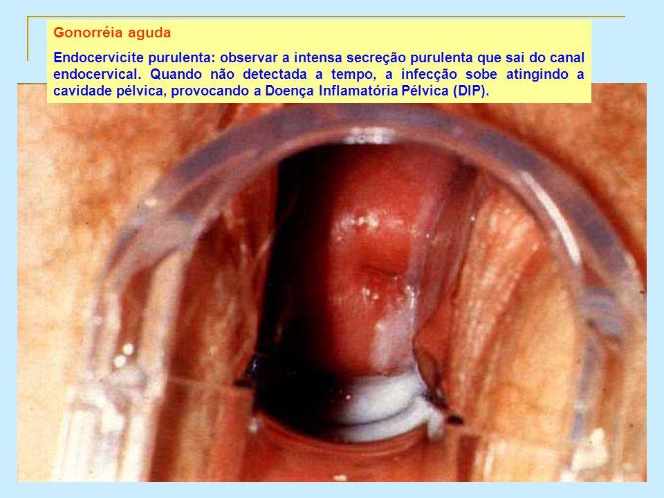 Gonorréia aguda