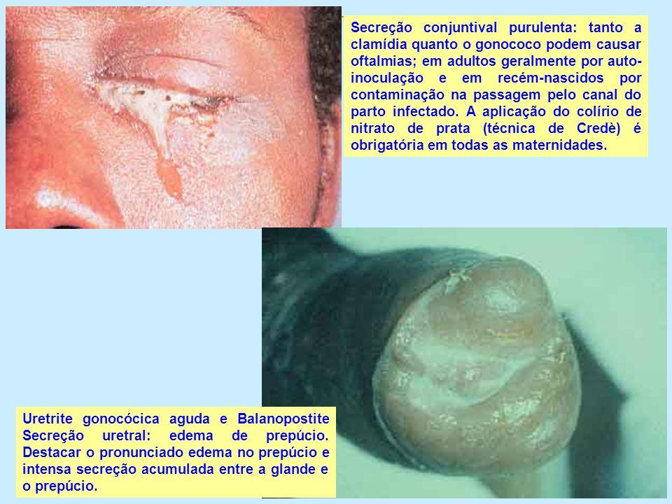 Secreção conjuntival purulenta: tanto a clamídia quanto o gonococo podem causar oftalmias; em adultos geralmente por auto-inoculação e em recém-nascidos por contaminação na passagem pelo canal do parto infectado. A aplicação do colírio de nitrato de prata (técnica de Credè) é obrigatória em todas as maternidades.