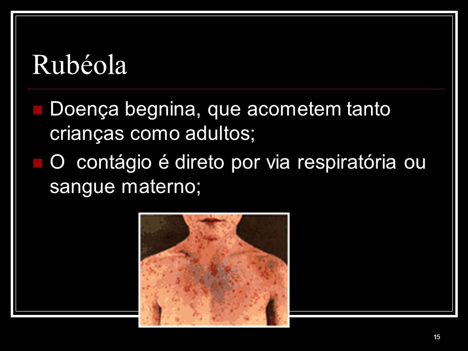 Rubéola Doença begnina, que acometem tanto crianças como adultos;