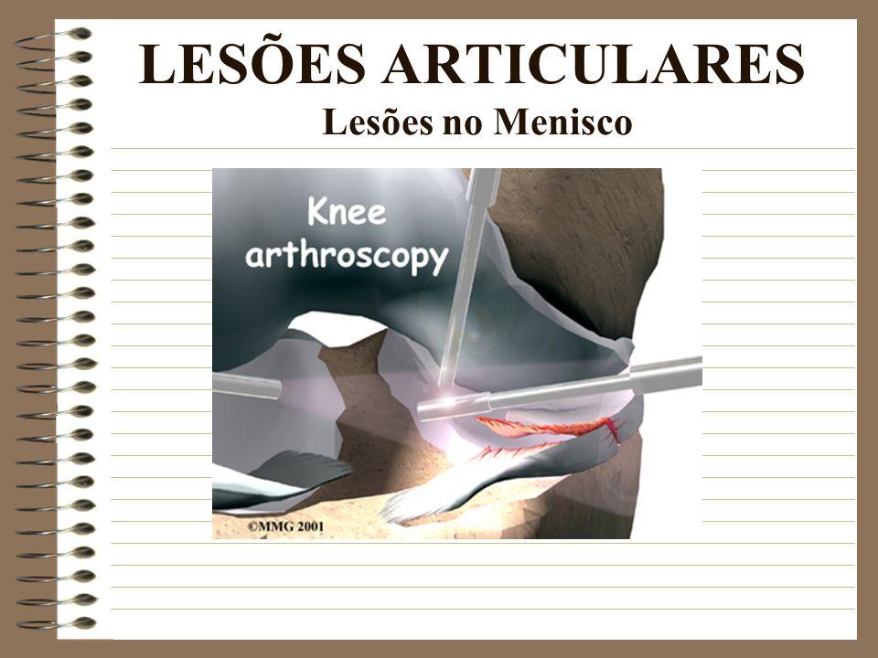 LESÕES ARTICULARES Lesões no Menisco