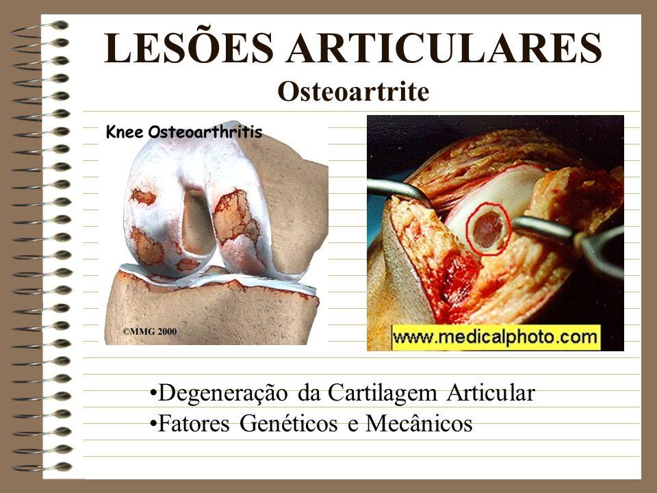 LESÕES ARTICULARES Osteoartrite