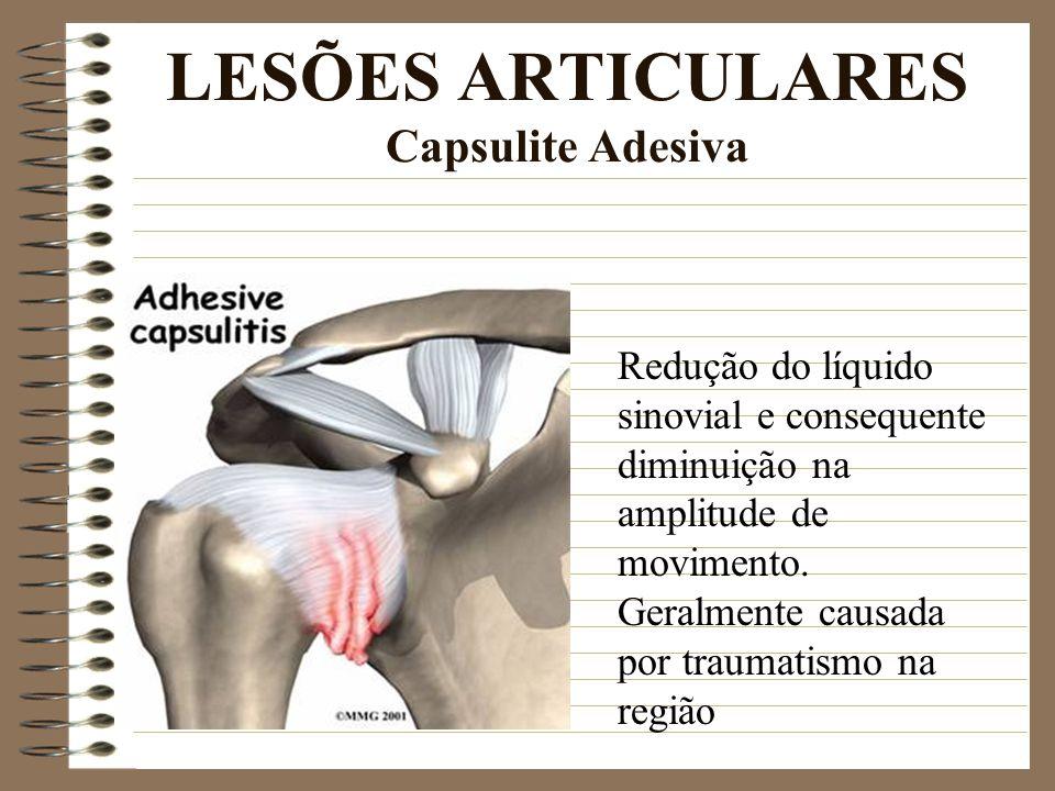 LESÕES ARTICULARES Capsulite Adesiva