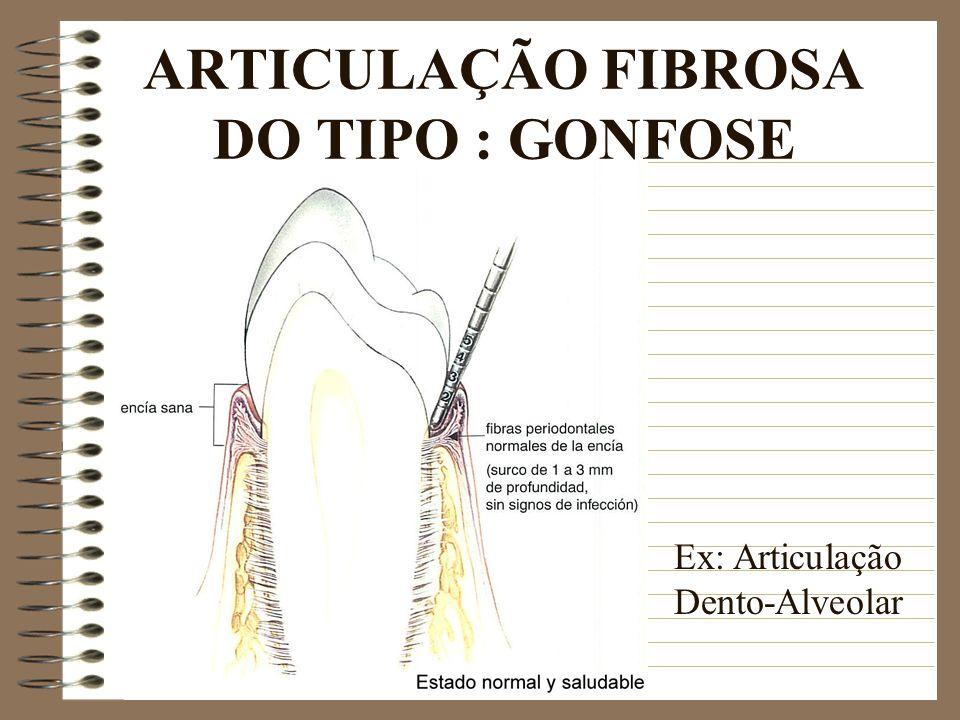ARTICULAÇÃO FIBROSA DO TIPO : GONFOSE