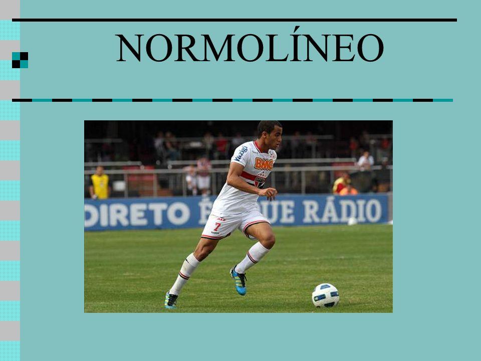 NORMOLÍNEO
