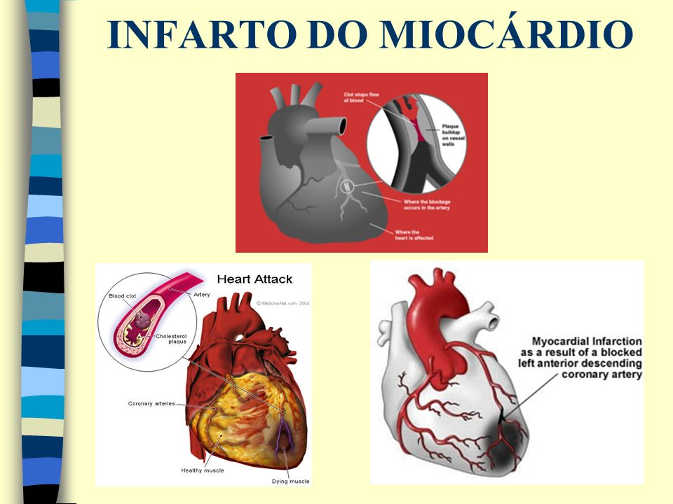 INFARTO DO MIOCÁRDIO