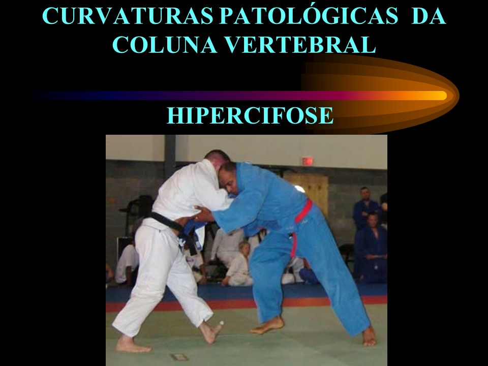 CURVATURAS PATOLÓGICAS DA COLUNA VERTEBRAL
