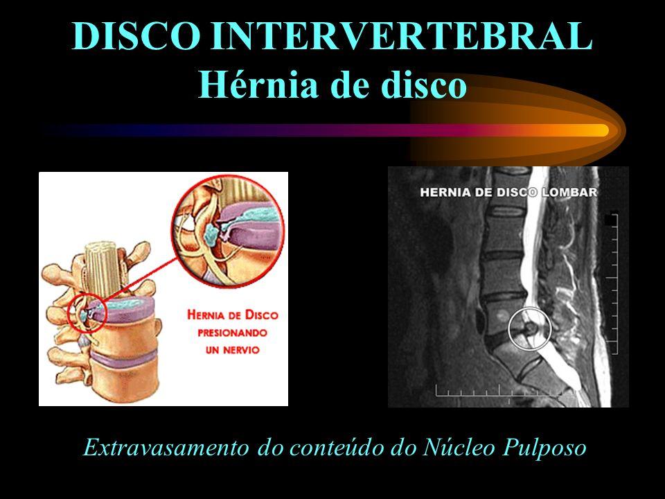 DISCO INTERVERTEBRAL Hérnia de disco