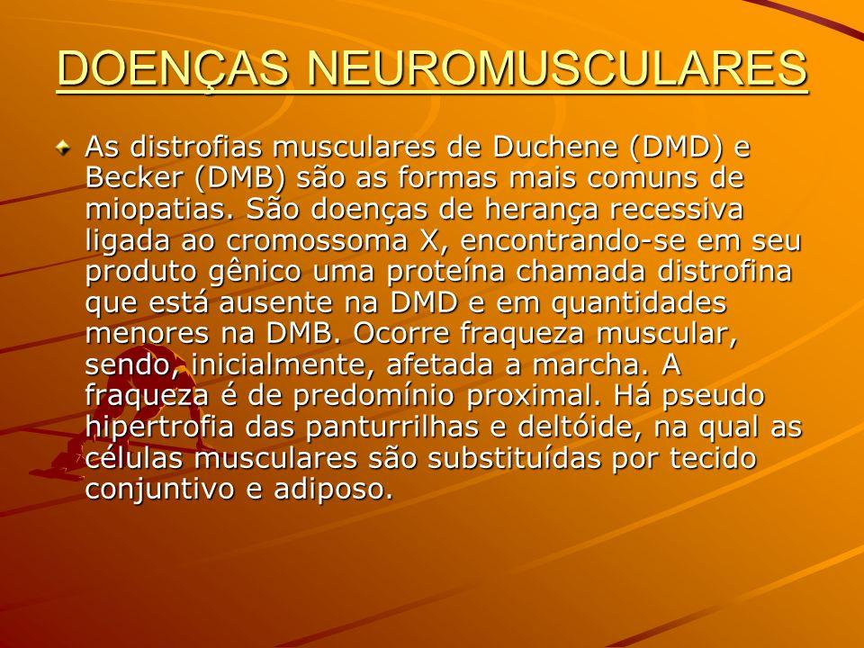 DOENÇAS NEUROMUSCULARES