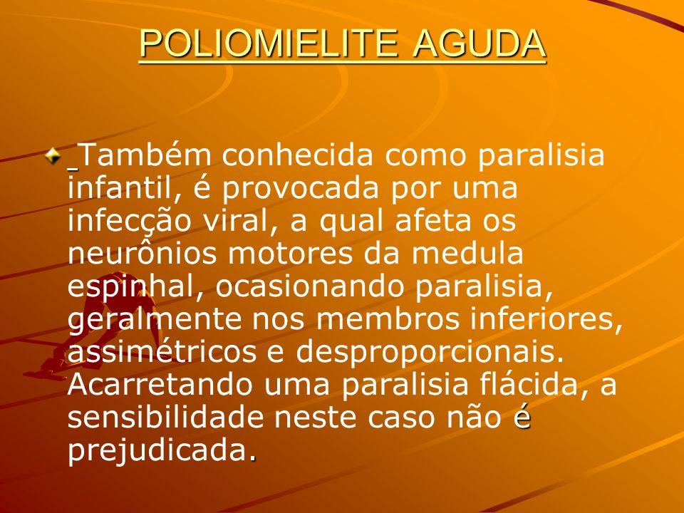 POLIOMIELITE AGUDA