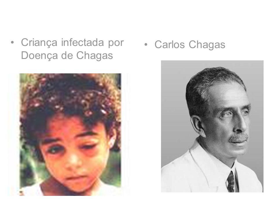 Criança infectada por Doença de Chagas