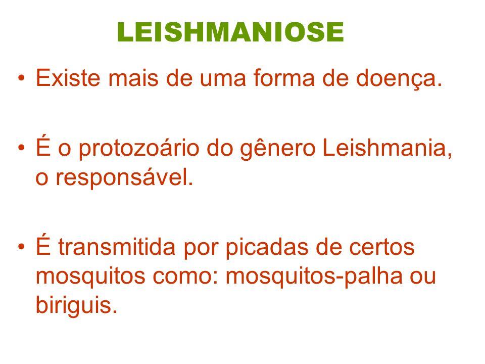 LEISHMANIOSE Existe mais de uma forma de doença.