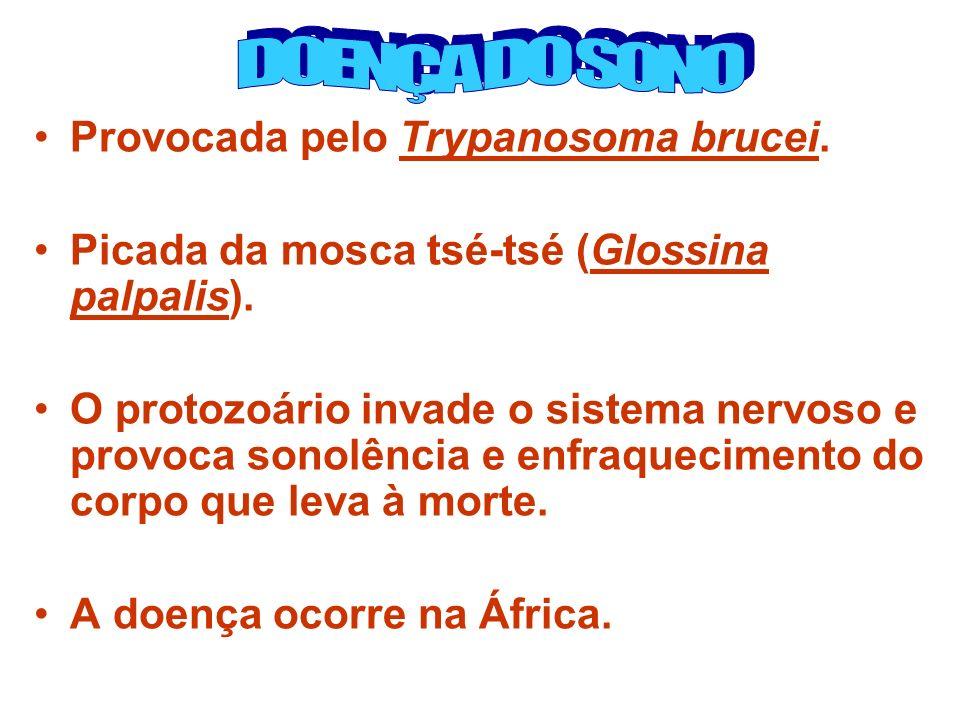 DOENÇA DO SONO Provocada pelo Trypanosoma brucei.