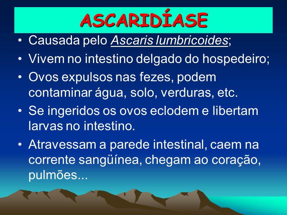 ASCARIDÍASE Causada pelo Ascaris lumbricoides;