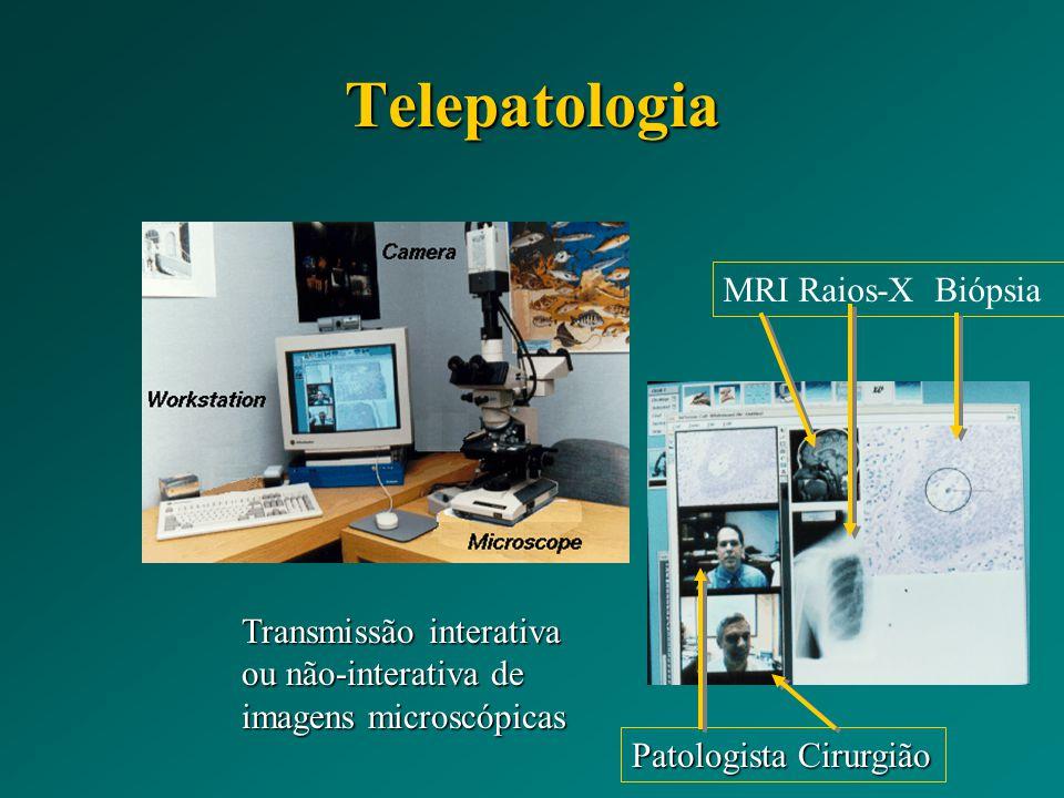 Telepatologia MRI Raios-X Biópsia