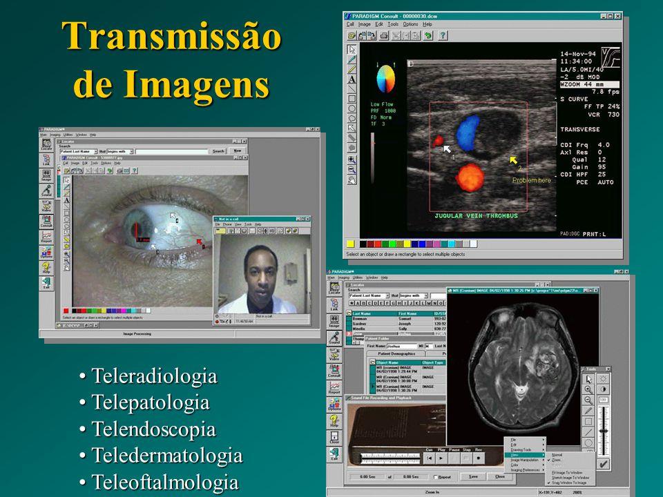 Transmissão de Imagens