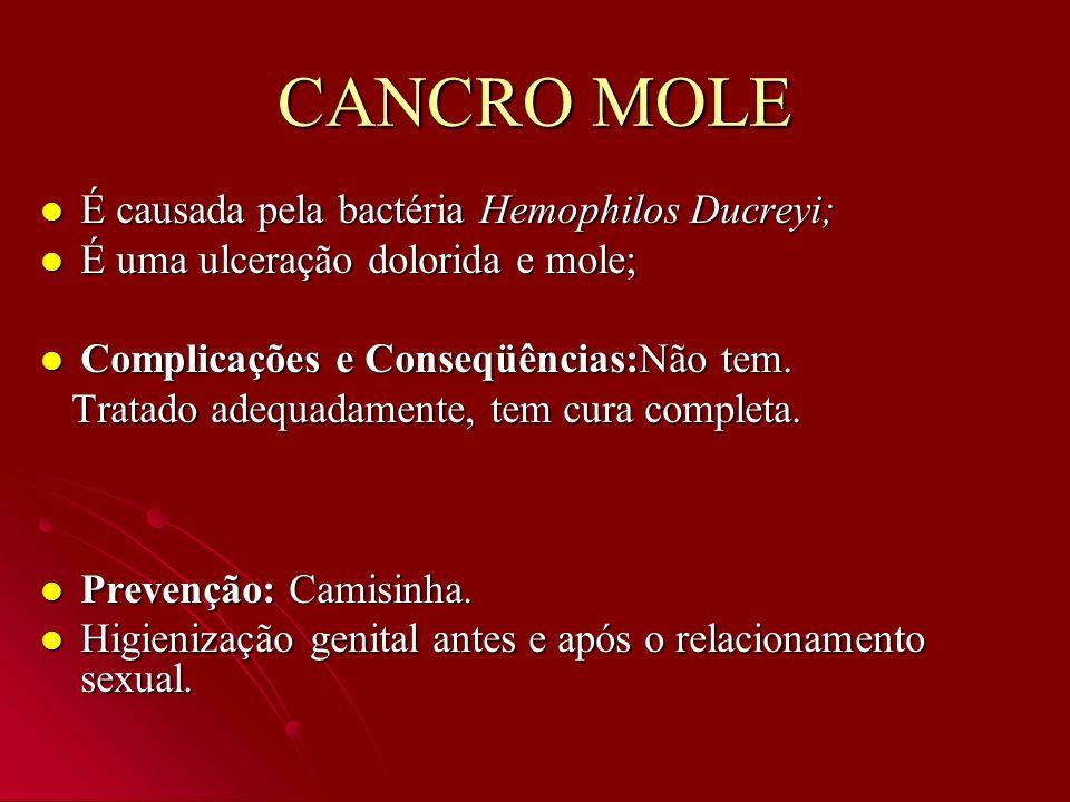 CANCRO MOLE É causada pela bactéria Hemophilos Ducreyi;