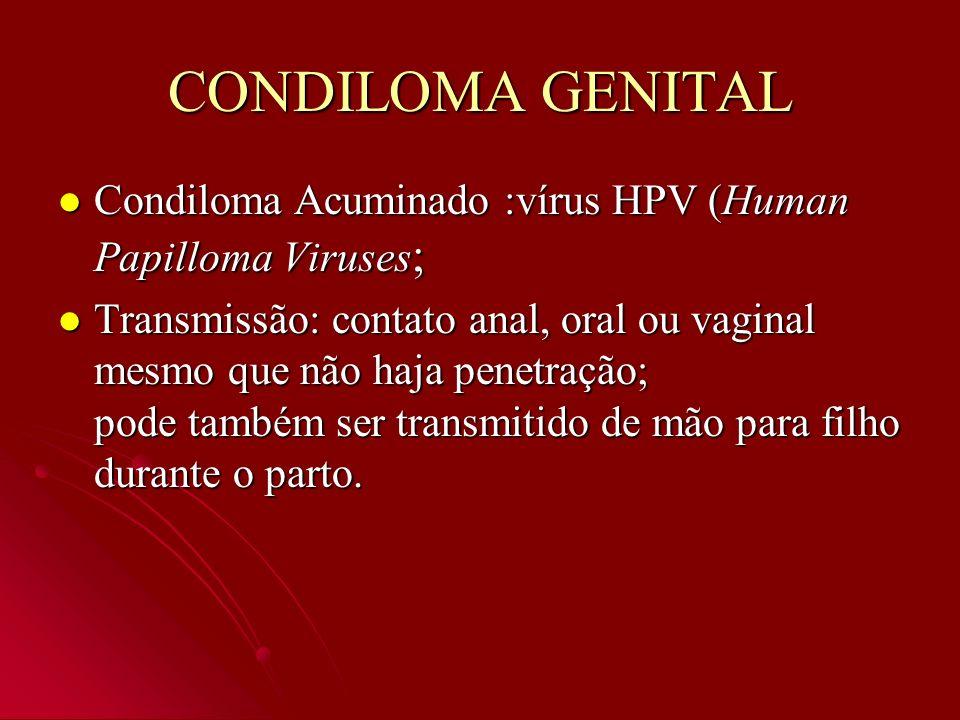 CONDILOMA GENITAL Condiloma Acuminado :vírus HPV (Human Papilloma Viruses;