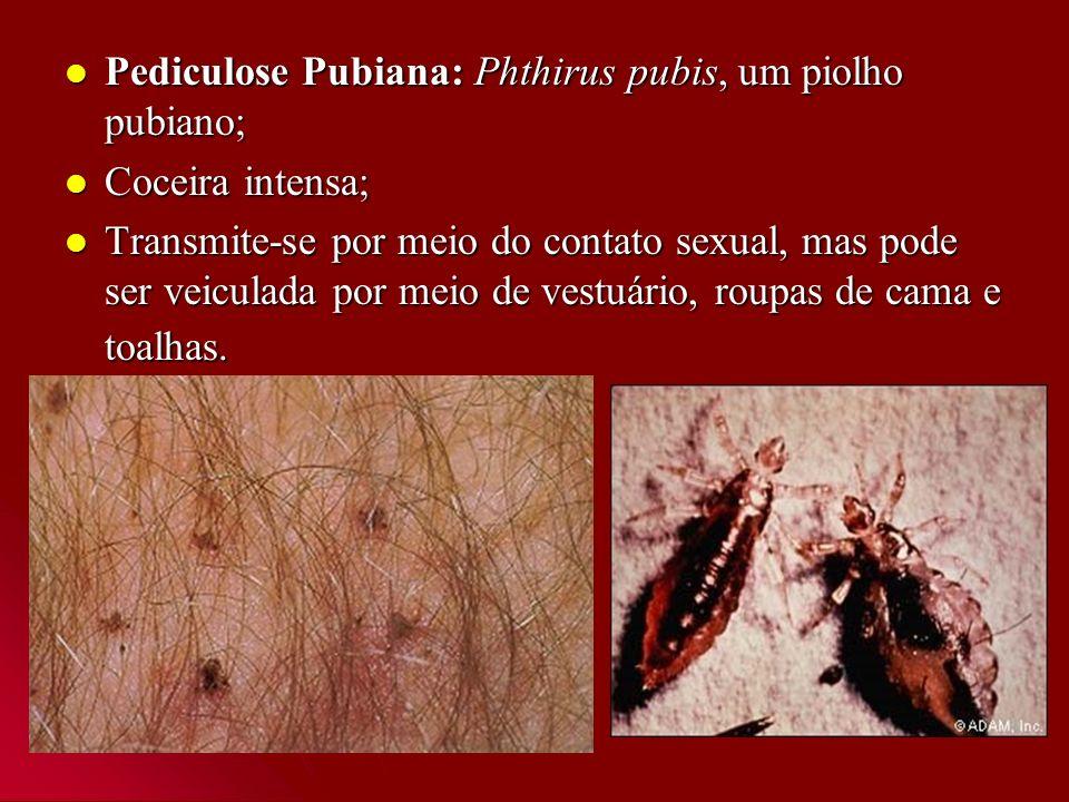 Pediculose Pubiana: Phthirus pubis, um piolho pubiano;