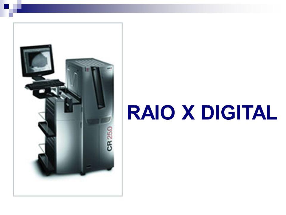 RAIO X DIGITAL