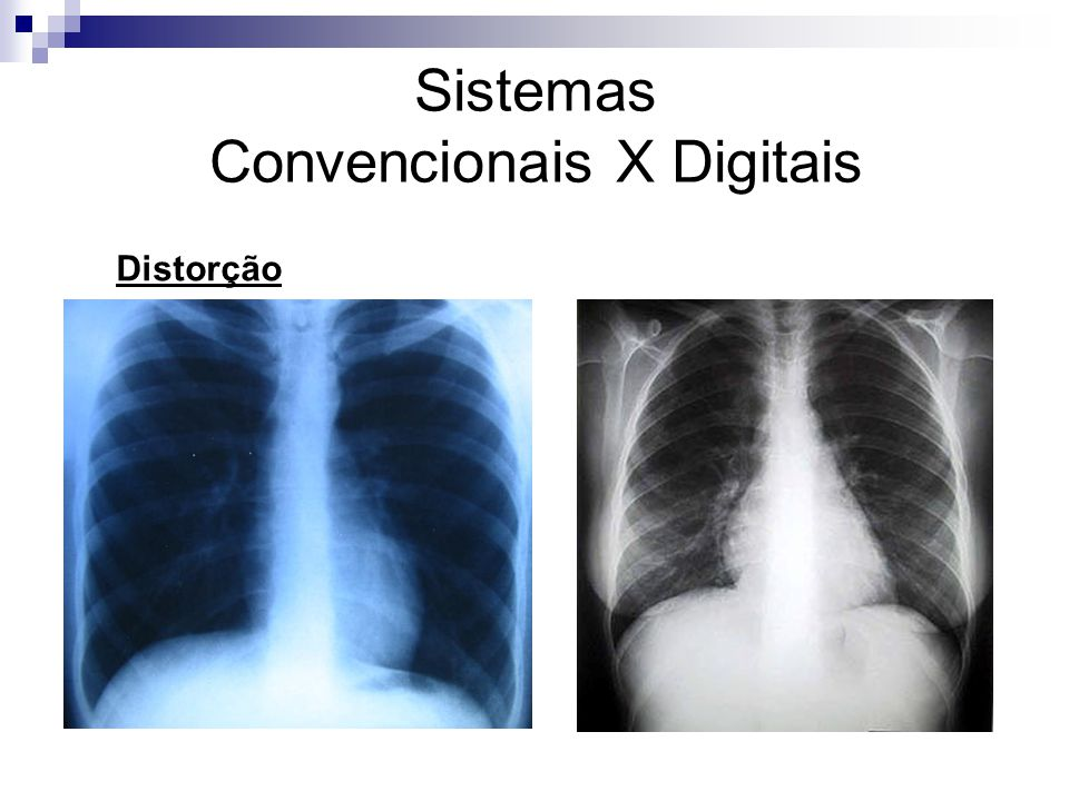 Sistemas Convencionais X Digitais