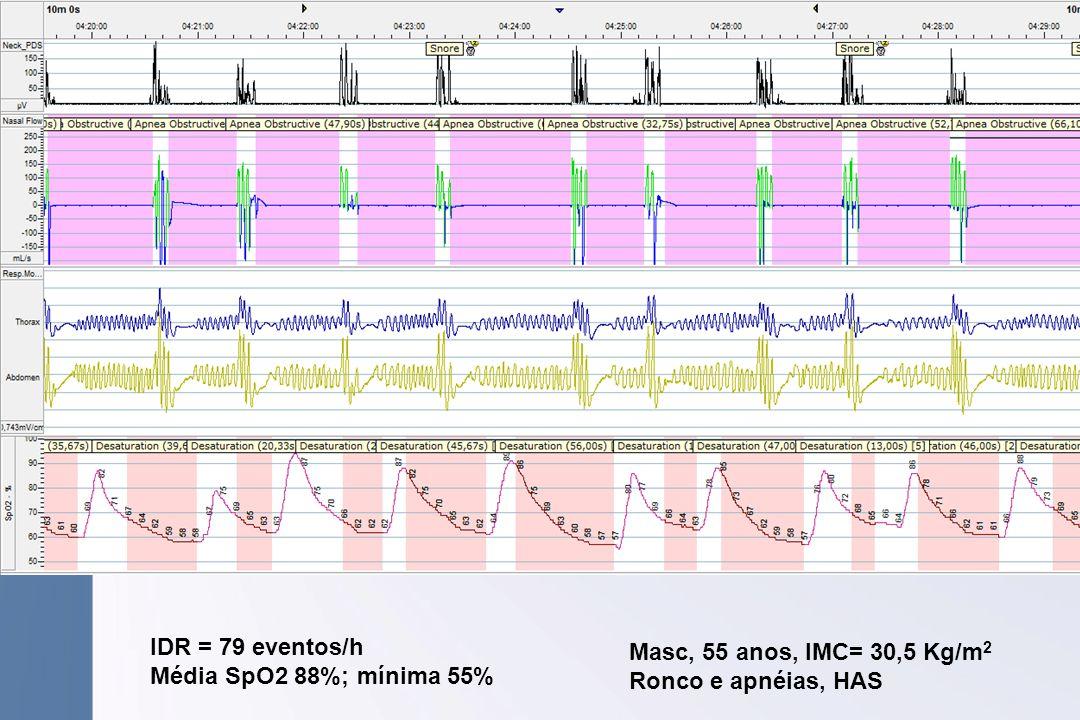 IDR = 79 eventos/h Média SpO2 88%; mínima 55% Masc, 55 anos, IMC= 30,5 Kg/m2 Ronco e apnéias, HAS