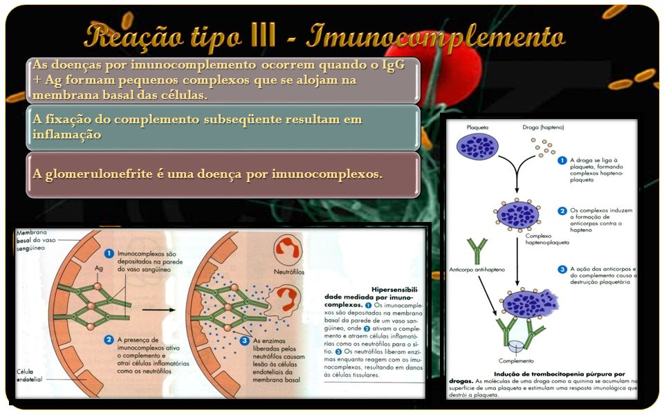 Reação tipo III - Imunocomplemento