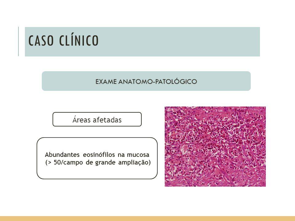 Abundantes eosinófilos na mucosa (> 50/campo de grande ampliação)