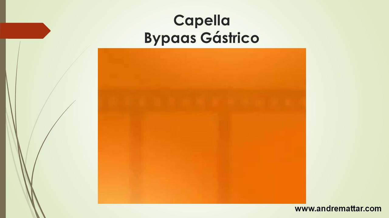 Capella Bypaas Gástrico