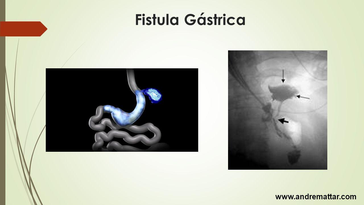 Fistula Gástrica www.andremattar.com