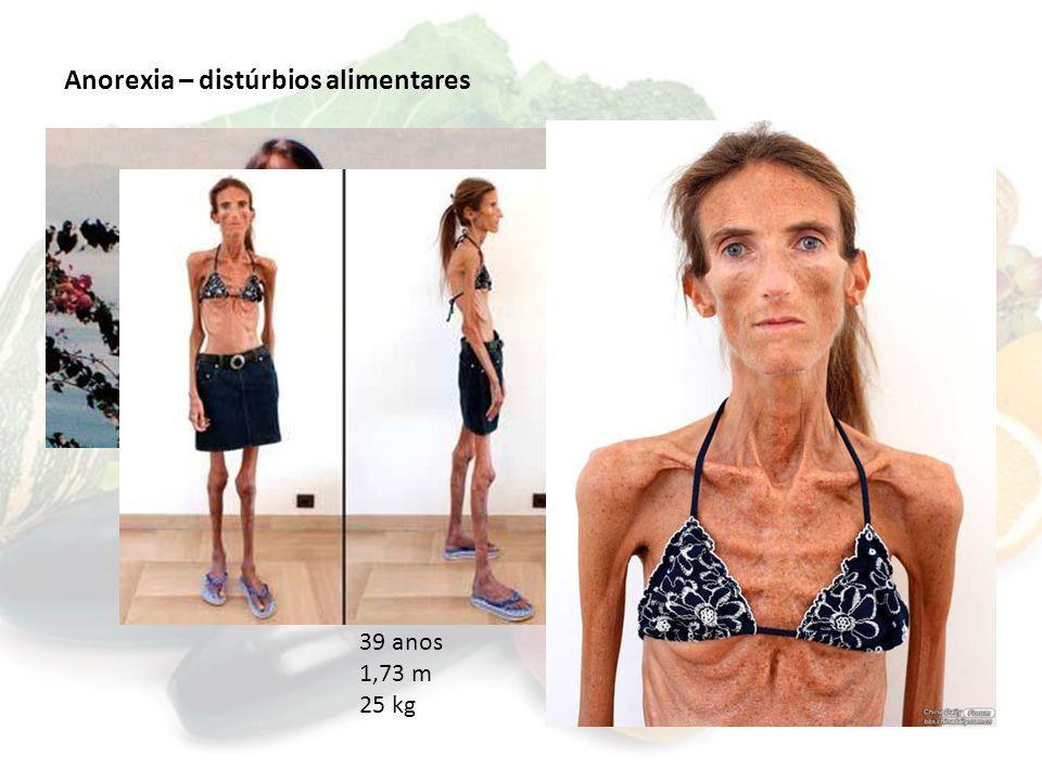Anorexia – distúrbios alimentares