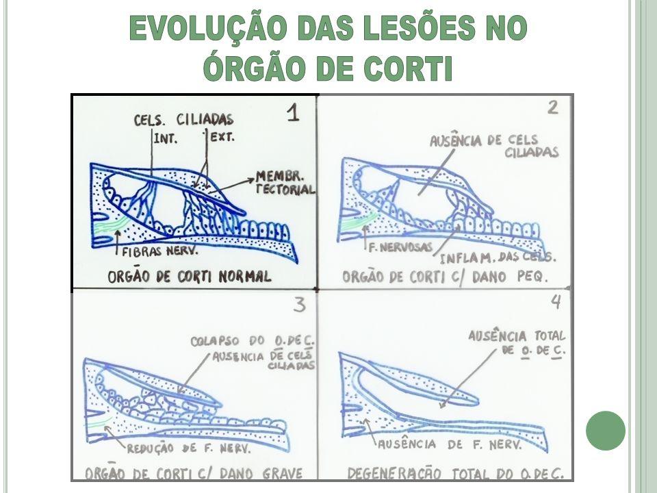 EVOLUÇÃO DAS LESÕES NO ÓRGÃO DE CORTI