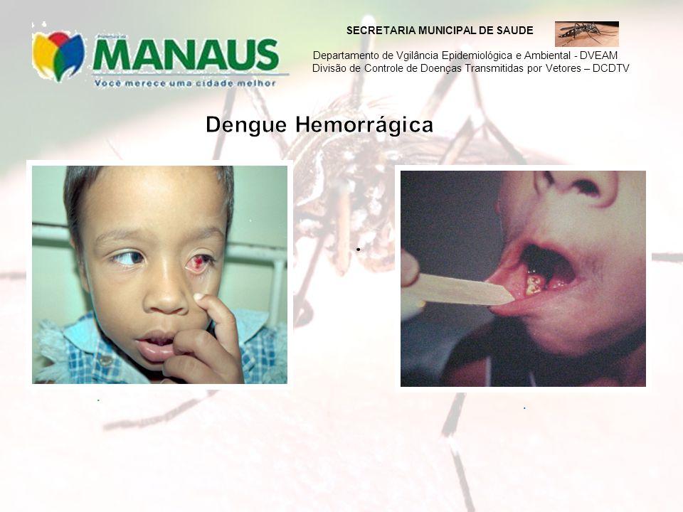 SECRETARIA MUNICIPAL DE SAUDE Departamento de Vgilância Epidemiológica e Ambiental - DVEAM Divisão de Controle de Doenças Transmitidas por Vetores – DCDTV
