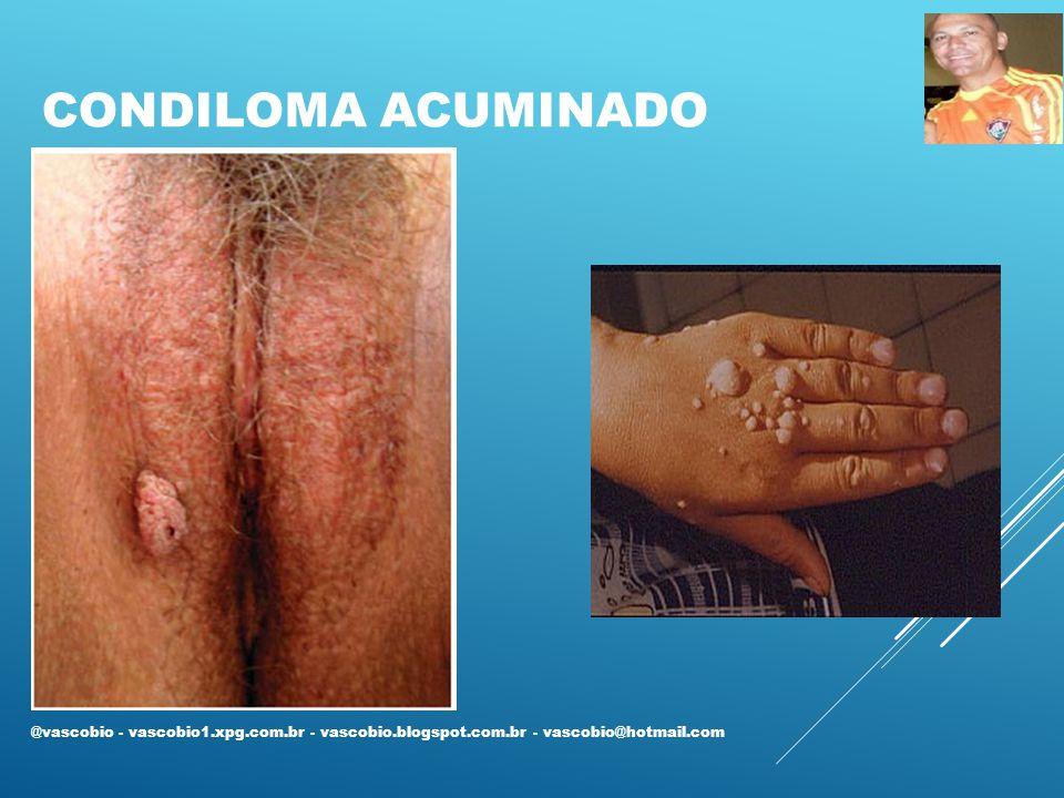 Condiloma acuminado @vascobio - vascobio1.xpg.com.br - vascobio.blogspot.com.br - vascobio@hotmail.com.